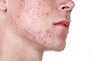El acné va más allá del brote… deja marcas que no se pueden quitar