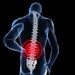 ¿Ese dolor de espalda lo está matando? Sobrepeso y mala postura son sus peores enemigos
