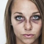 Novio la agrede y ella publica fotos para evitar violencia